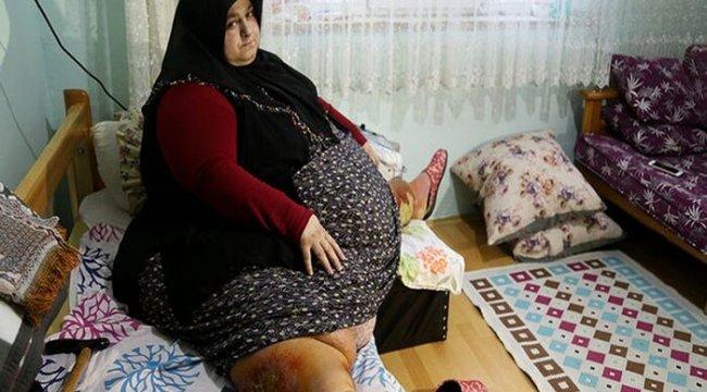 Sakarya 'da yaşayan ve 250 kilo olan Sevim Bal obezite operasyonu ile 95 kiloya düştü